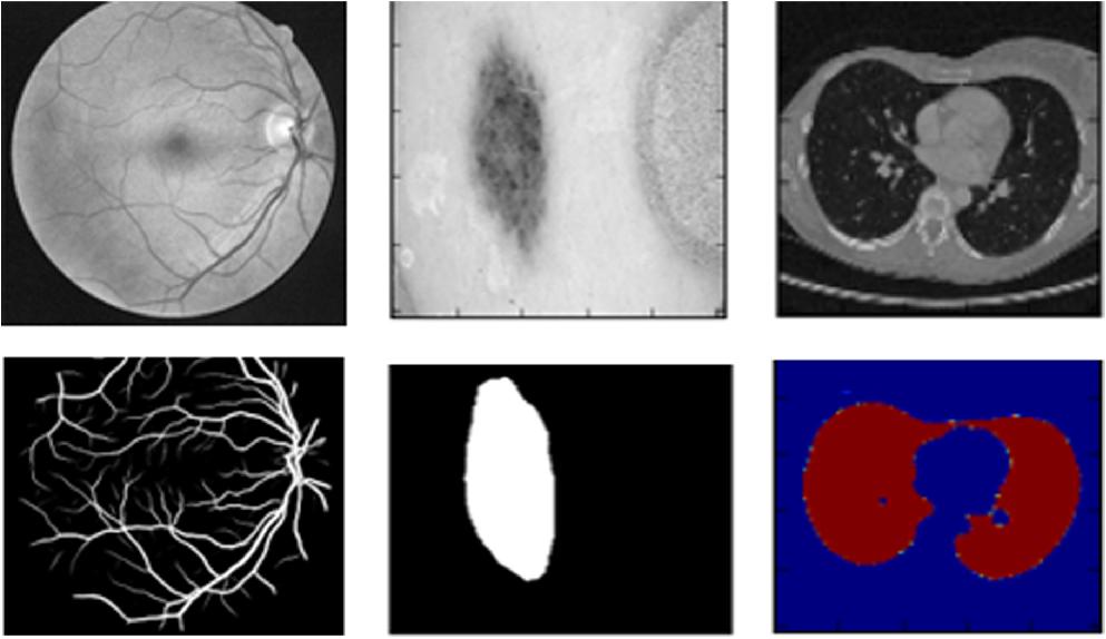 U-Net : Convolutional Networks for Biomedical Image Segmentation